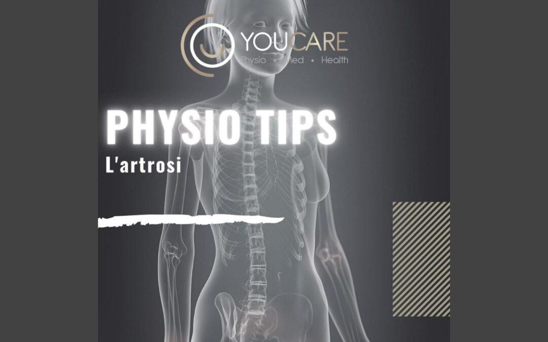 PHYSIO TIPS: l'artrosi